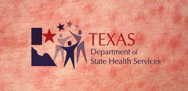 Texas Health Agency Issues Measles Alert